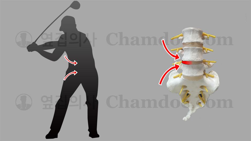 골프 다운스윙이 척추와 허리디스크(추간판)에 미치는 영향