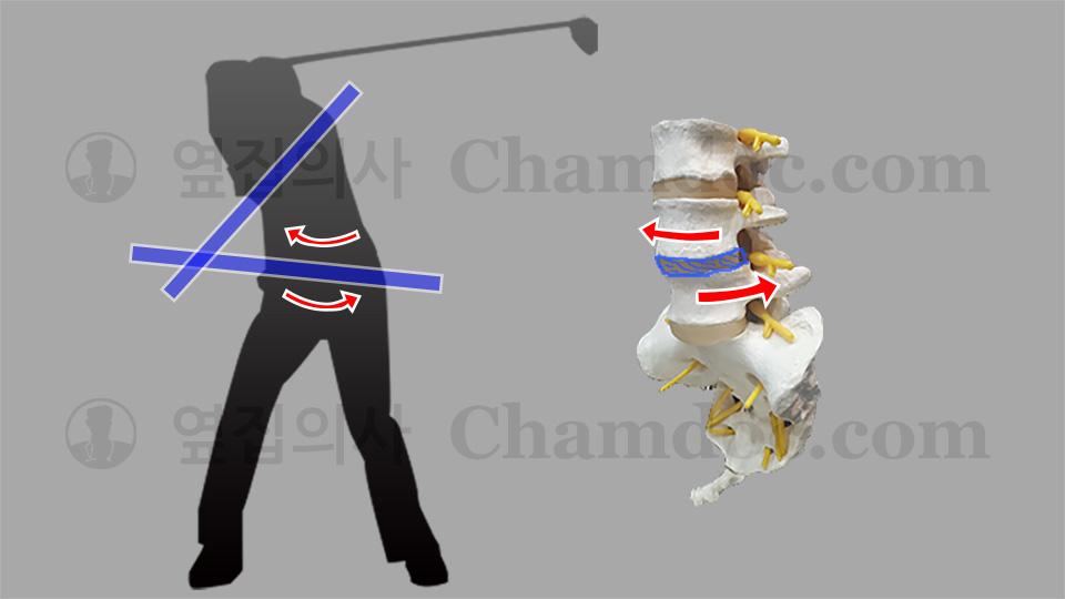 골프 백스윙이 척추와 허리디스크(추간판)에 미치는 영향