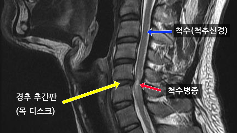 경추 퇴행성 척수병증 MRI 소견