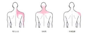 Read more about the article 목디스크, 거북목, 어깨질환의 증상과 차이점은?