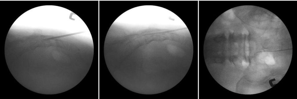 신경성형술 시술 사진