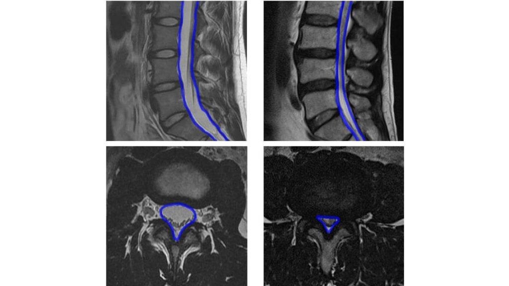 척추관협착증 MRI