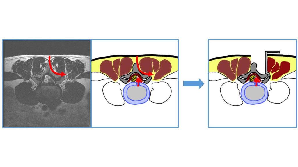 추간판절제술 근육박리 과정