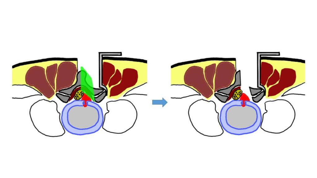 추간판절제술 과정. 척추후궁 부분 절제술