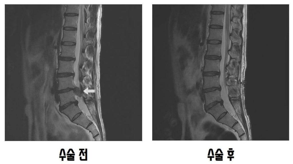 추간판절제술 수술 전후 MRI측면비교