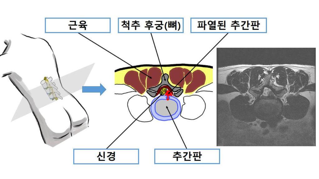 추간판절제술 해부학 구조