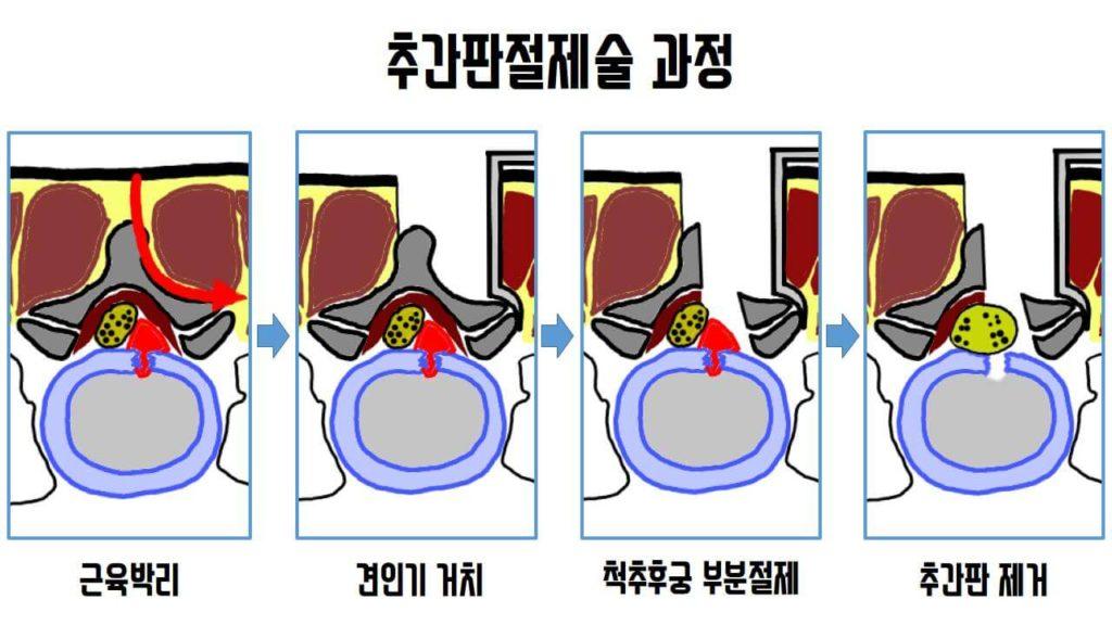 미세현미경 추간판제거술