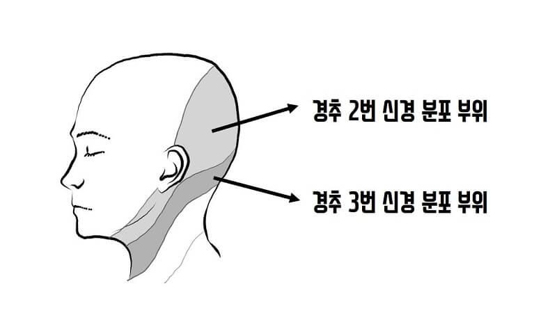 경추성 두통 신경분포 부위