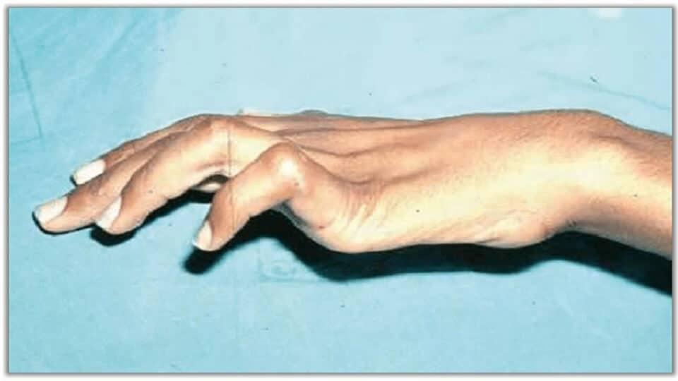 척골신경포착증후군 갈고리손