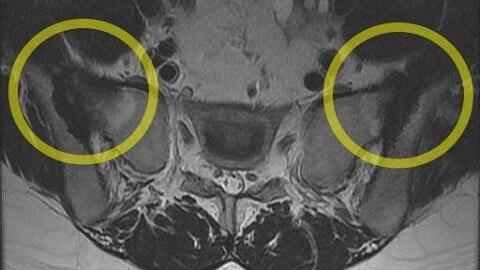 천장관절염 MRI 사진