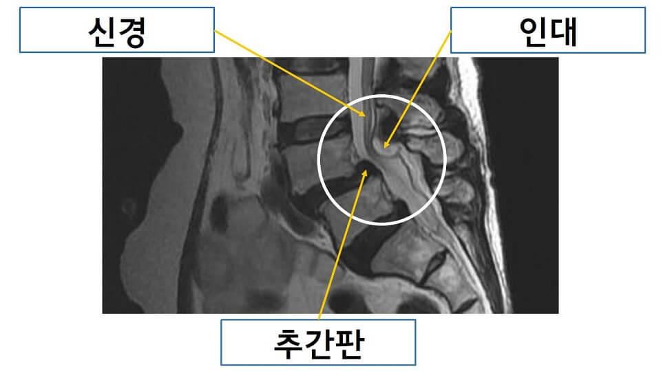 척추전방전위증 MRI