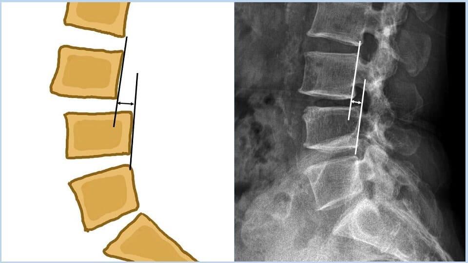 척추전방전위증