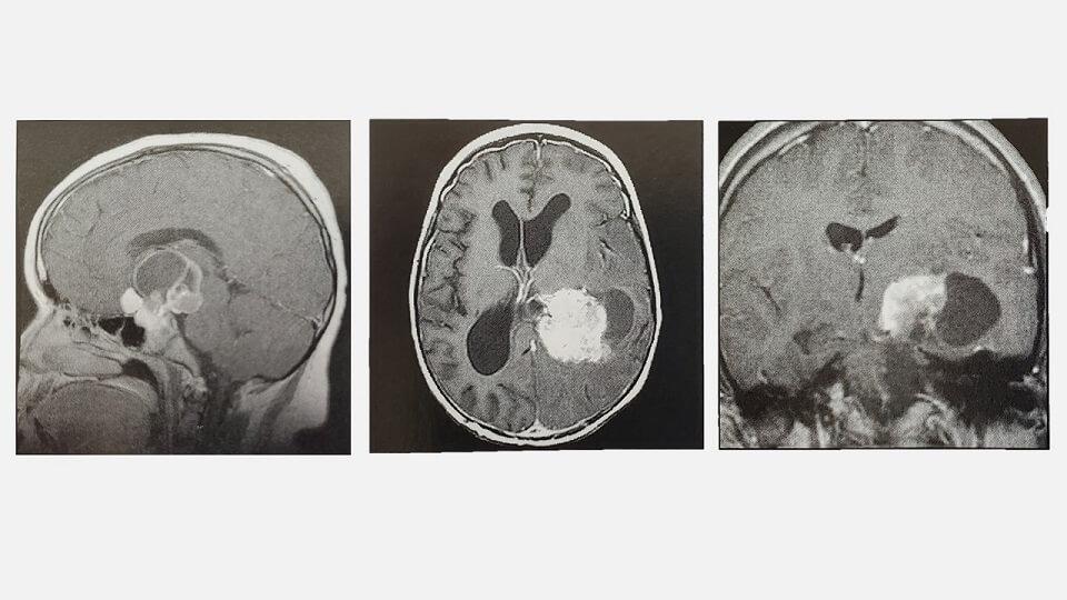 여러가지 뇌종양 MRI 사진들 : 뇌종양 증상은 뇌종양 종류, 위치에 따라 다양하다.